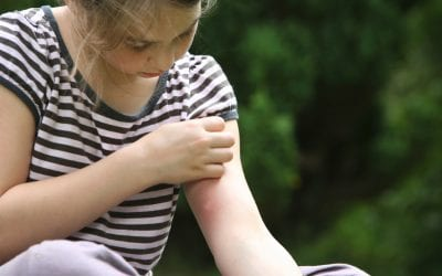 Common summer health hazards